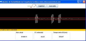 software variabilidade frequencia cardiaca